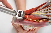 外科手術によらずに様々な症例に適応できる場合がある