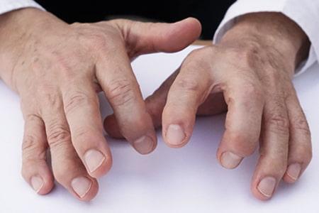 長年の診療により侵襲された吉田勧持先生の手